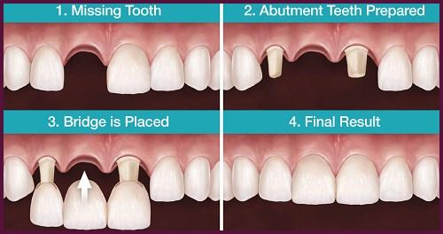 Trồng răng sứ giá rẻ nhất là bao nhiêu