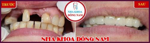 Trồng răng sứ giá rẻ nhất là bao nhiêu 1