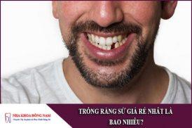 trồng răng sứ giá rẻ nhất bao nhiêu