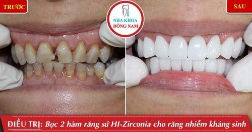 trồng răng sứ thẩm mỹ cho răng nhiễm tetra