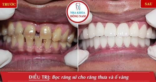 trồng răng sứ thẩm mỹ cho răng thưa ố vàng