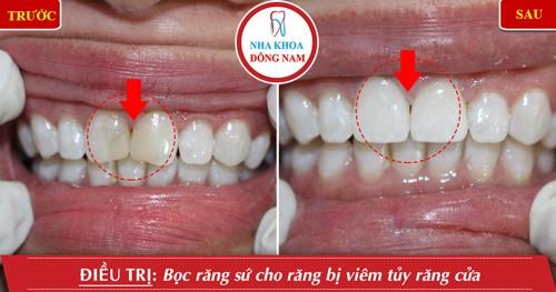 trồng răng sứ cho răng hư, chết tủy