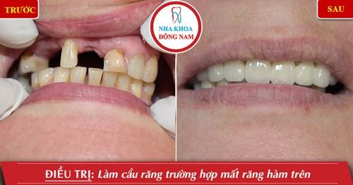 trồng răng sứ bắc cầu cho răng mất