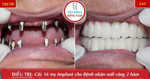 trồng răng sứ trên implant