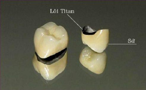 trồng răng sứ titan giá rẻ là bao nhiêu 1