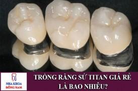 trồng răng sứ titan giá rẻ là bao nhiêu