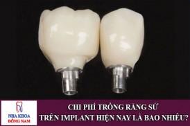 Chi Phí Trồng Răng Sứ Trên Implant Hiện Nay Là Bao Nhiêu?