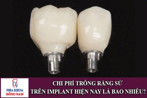 trong-rang-su-tren-implant-gia-bao-nhieu