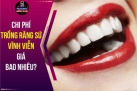 trồng răng sứ vĩnh viễn giá bao nhiêu