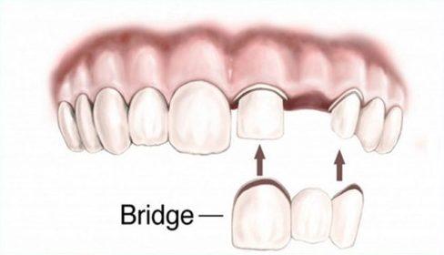 trồng răng vĩnh viễn loại nào tốt nhất hiện nay 1