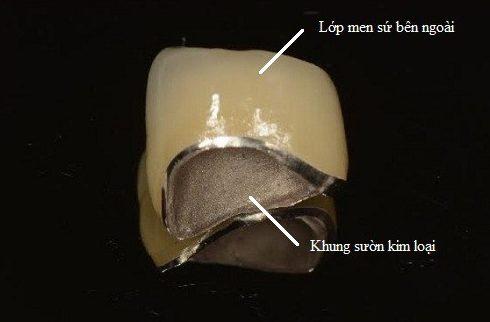 tuổi thọ của răng sứ kim loại là bao lâu 1