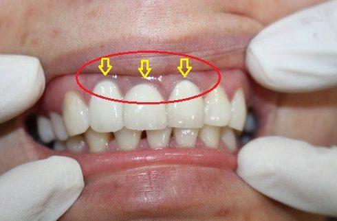 tuổi thọ của răng sứ kim loại là bao lâu 2