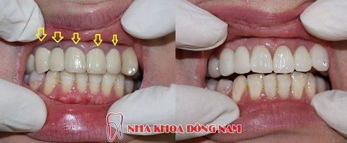 tuổi thọ của răng sứ kim loại là bao lâu 3
