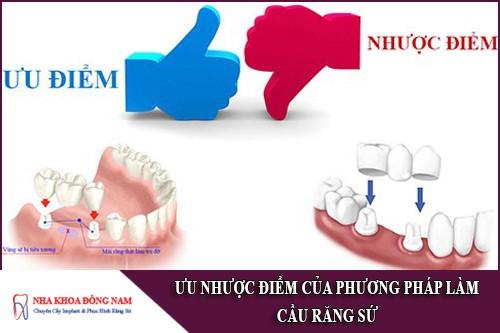 ưu nhược điểm của phương pháp làm cầu răng sứ