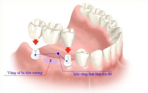 nhược điểm của cầu răng sứ