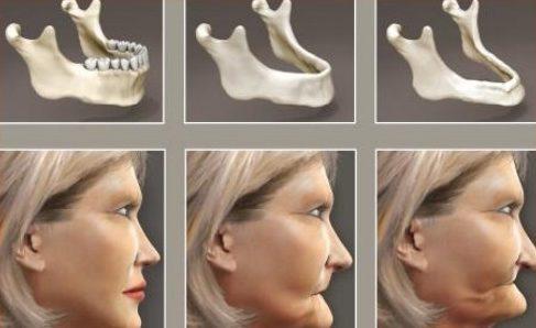 tình trạng tiêu xương hàm