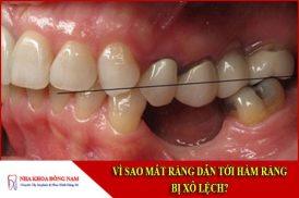 vì sao mất răng dẫn tới hàm răng bị xô lệch