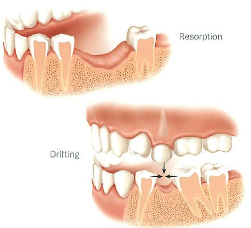 răng xô lệch vào vùng mất răng