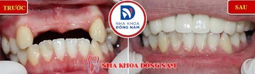 làm cầu răng sứ cho 4 răng cửa