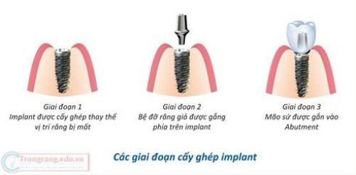Trồng Răng Implant Có Ảnh Hưởng Gì Đến Sức Khỏe Không-1