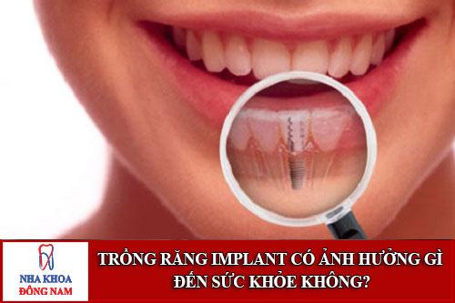 Trồng Răng Implant Có Ảnh Hưởng Gì Đến Sức Khỏe Không-