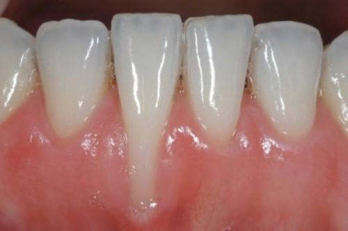 tụt lợi chân răng
