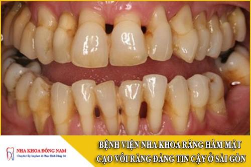 bệnh viện nha khoa răng hàm mặt cạo vôi răng đáng tin cậy ở Sài Gòn