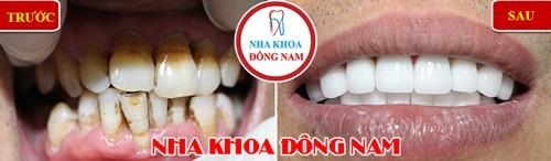 Bọc sứ cho khách hàng bị khuyết cổ chân răng và kích thước không đồng đều