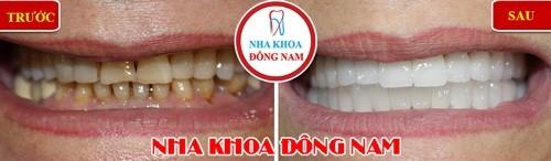 bọc sứ cho hàm răng xỉn màu và thưa