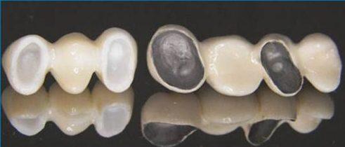 bọc răng sứ có tác hại gì không2