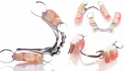 răng giả tháo lắp bán phần