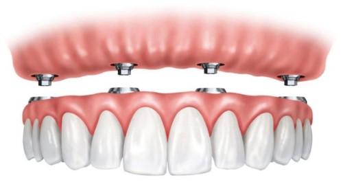 răng giả tháo lắp trên implant
