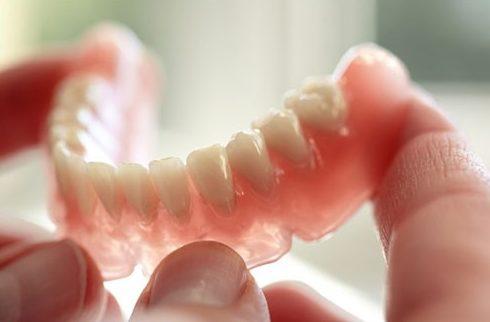 các loại răng giả tháo lắp hiện nay 1