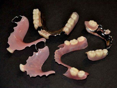 các loại răng giả tháo lắp hiện nay 2