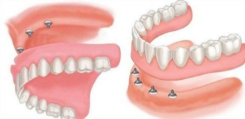 các loại răng giả tháo lắp hiện nay 3