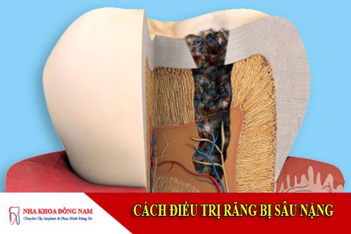 cách điều trị răng bị sâu nặng