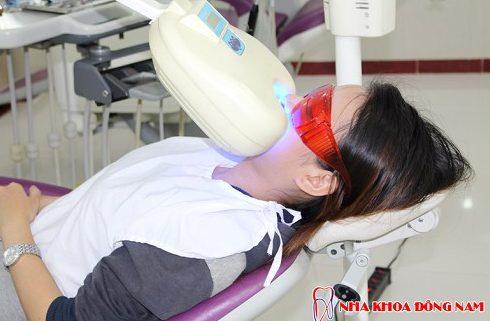 cách tẩy trắng răng bằng muối đơn giản và hiệu quả 5