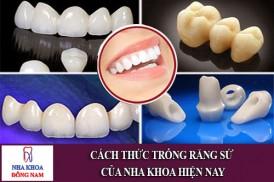 cách thức trồng răng sứ của nha khoa hiện nay