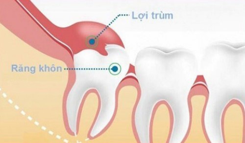 răng bị lợi trùm khi mọc