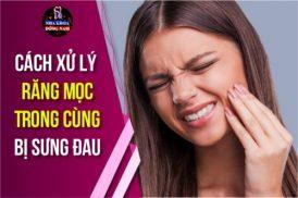 cách xử lý răng mọc trong cùng bị sưng đau