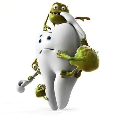 vôi răng là gì? vì sao phải cạo vôi răng 1