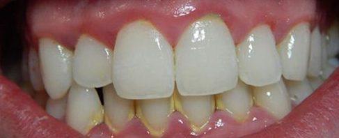 cạo vôi răng là gì ? vì sao phải cạo vôi răng 3
