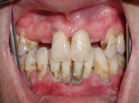 cạo vôi răng là gì ? vì sao phải cạo vôi răng 5
