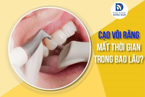 cạo vôi răng mất thời gian trong bao lâu
