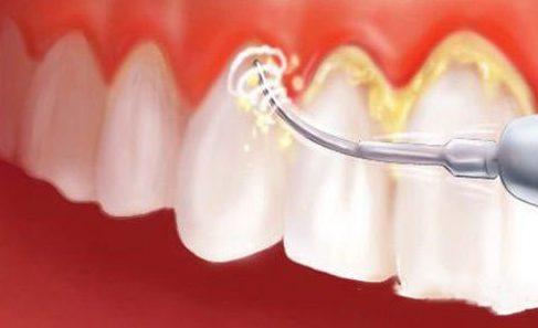 cạo vôi răng mất thời gian trong bao lâu 3