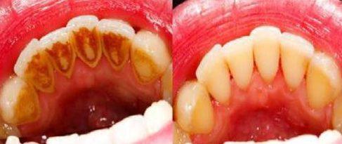 cạo vôi răng ở đâu uy tín và chất lượng nhất tp.hcm 1