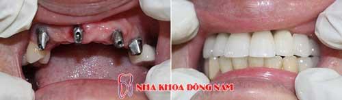 cấy ghép 4 trụ implant cho 6 răng đã mất - 10102016