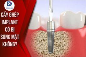 Cấy Ghép Implant Có Bị Sưng Mặt Không?
