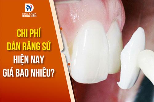 chi phí dán răng sứ hiện nay giá bao nhiêu