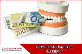 chi phí trồng răng giả có đắt không